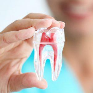 Hill Top Family Dental Endodontics